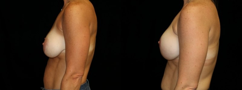 Revision of Breast Augmentation