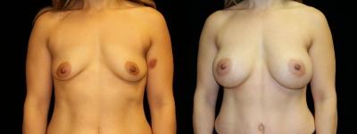 Breast Augmentation and Tummy Tuck