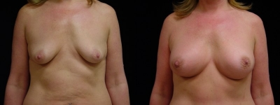 Breast Augmentation, Tummy Tuck and Liposuction