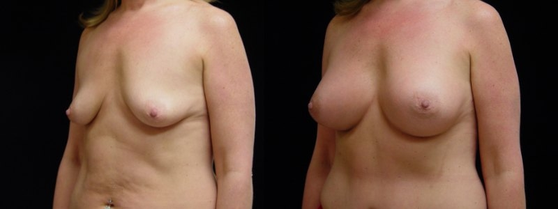 Breast Augmentation, Tummy Tuck, Liposuction