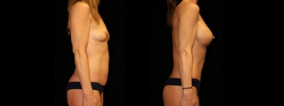 Breast Augmentation and Tummy Tuck