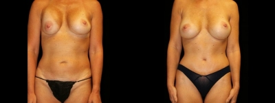 Abdominoplasty with revison of breast augmentation
