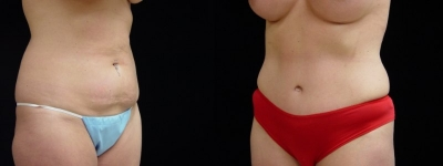 Breast Augmentation, Tummy Tuck, Liposuction