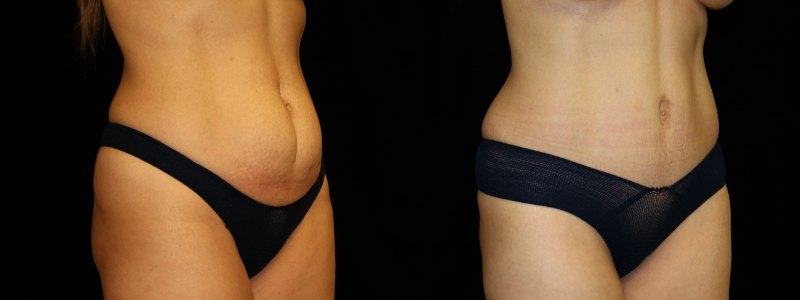 Tummy Tuck and Breast Augmentation