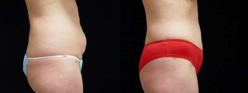 Tummy Tuck, Breast Augmentation, Liposuction