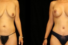 Tummy Tuck with Breast Augmentation and Lift